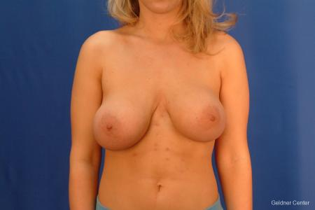 Breast Augmentation Streeterville, Chicago 2409 - Before Image 1