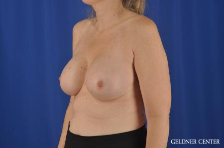 Chicago Complex Breast Augmentation 8750 -  After Image 4