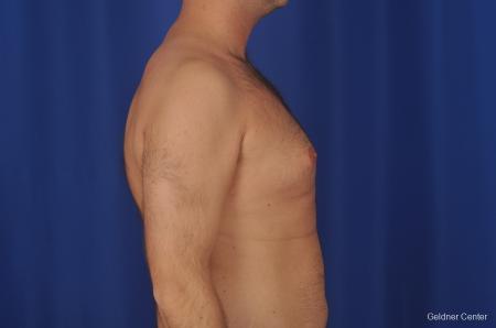 Gynecomastia: Patient 1 - Before Image 2