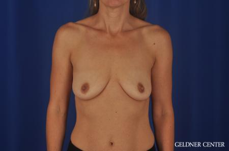 Breast Augmentation Lake Shore Dr, Chicago 8748 - Before Image 1