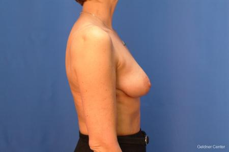 Breast Lift Hinsdale, Chicago 2509 - Before Image 2