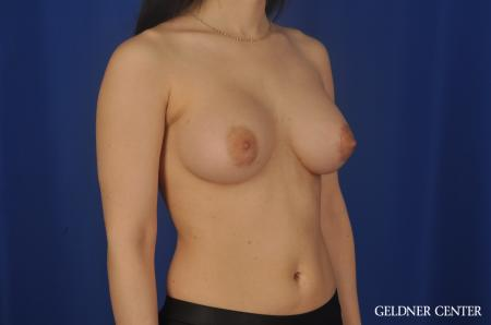 Chicago Breast Lift 5473 -  After Image 2