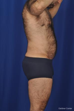 Abdominoplasty For Men: Patient 1 - After Image 3