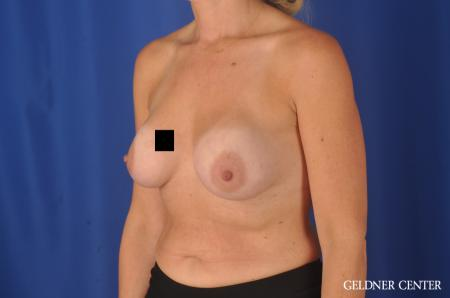 Chicago Breast Augmentation 11970 - Before and After Image 4