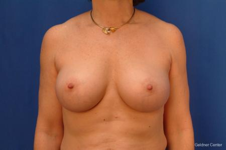 Breast Augmentation Hinsdale, Chicago 2541 -  After Image 1