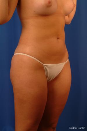 Liposuction: Patient 13 - After Image 2