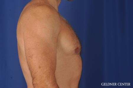 Gynecomastia: Patient 9 - After Image 2