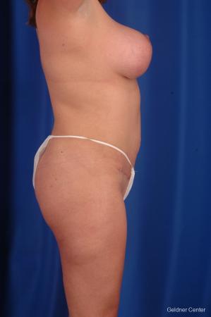 Lipoabdominoplasty: Patient 1 - After Image 2