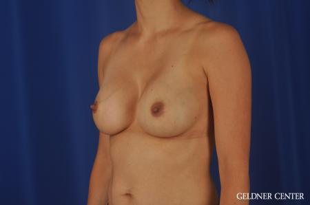 Chicago Breast Augmentation 8818 -  After Image 4
