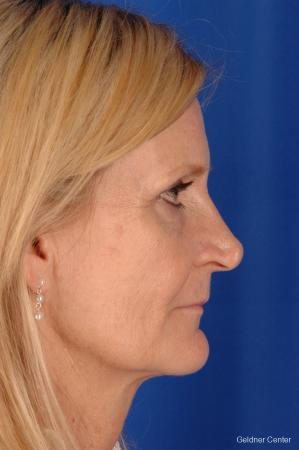 Facelift: Patient 3 - Before Image 3
