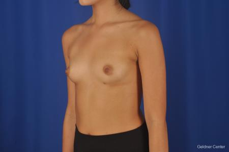 Breast Augmentation Streeterville, Chicago 8616 - Before and After 4