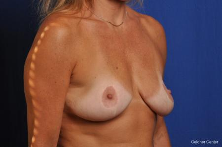 Complex Breast Augmentation Streeterville, Chicago 2392 - Before Image 3