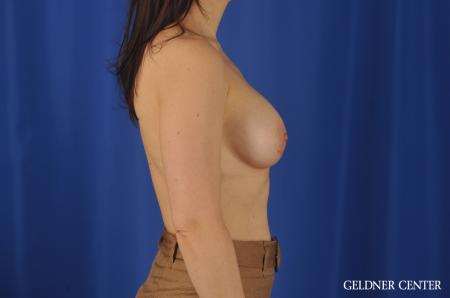 Chicago Breast Augmentation 8760 -  After Image 2