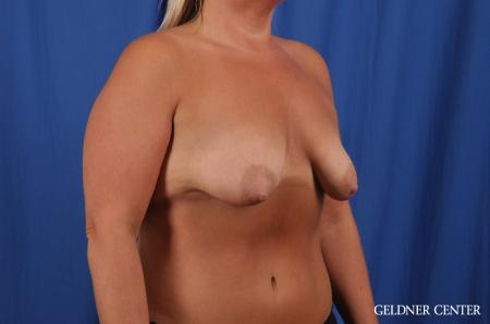 Breast Lift: Patient 41 - Before Image 3