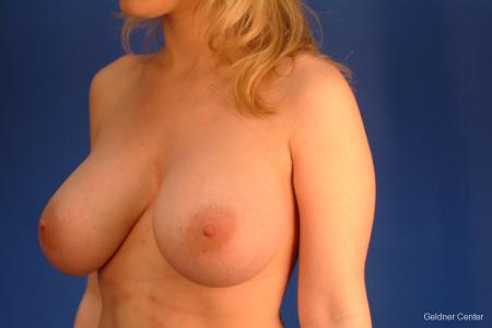 Chicago Complex Breast Augmentation -  After Image 3
