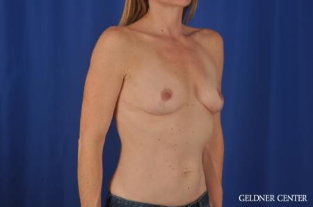 Chicago Breast Augmentation 4004 - Before Image 2