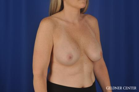 Chicago Complex Breast Augmentation 8750 - Before Image 3