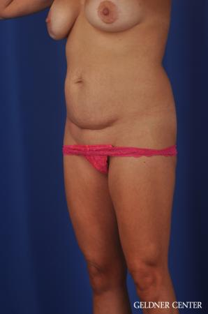 Abdominoplasty: Patient 5 - Before Image 2