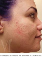 Chemical VI Peel before and after photos Lake Shore Dr, Chicago 2315 - After