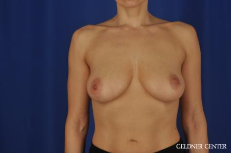 Chicago Breast Augmentation 5475 - Before Image 1