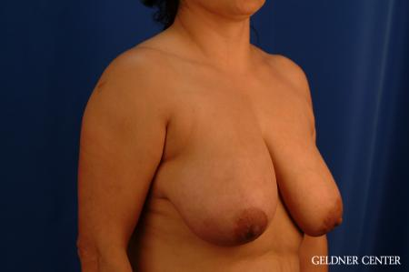 Breast Reduction Hinsdale, Chicago 2630 - Before Image 3