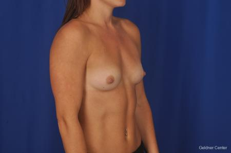 Chicago Breast Augmentation 2393 - Before Image 2