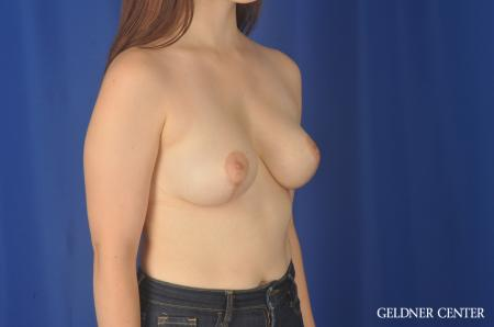 Breast Reduction: Patient 26 - After Image 2