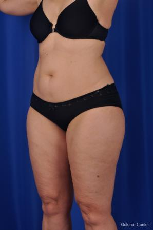 Liposuction: Patient 2 - Before and After Image 5