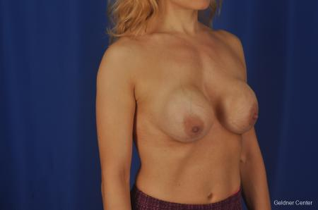 Chicago Complex Breast Augmentation 2073 - Before Image 3
