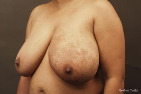 Chicago Breast Reduction 2375 - Before and After Image 4