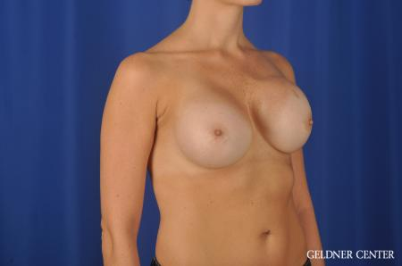 Chicago Breast Augmentation 11868 - Before Image 2