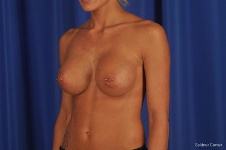 Chicago Breast Augmentation 2328 -  After Image 4