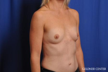 Breast Augmentation: Patient 186 - Before Image 2