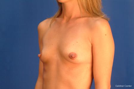 Breast Augmentation Hinsdale, Chicago 2510 - Before and After Image 4