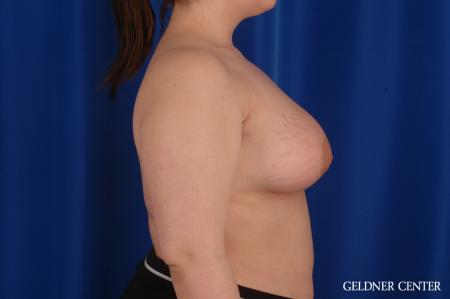 Chicago Complex Breast Augmentation 2616 -  After Image 2