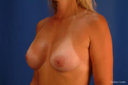 Complex Breast Augmentation Lake Shore Dr, Chicago 2419 -  After Image 3