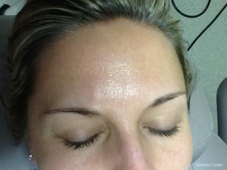 SkinPen®: Patient 1 - Before Image