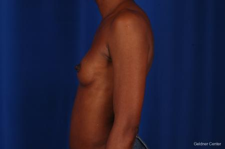 Chicago Breast Augmentation 2293 - Before Image 4