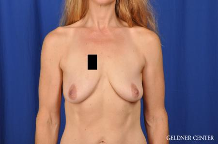 Chicago Breast Augmentation 5467 - Before Image 1