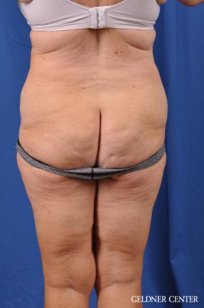 Liposuction: Patient 34 - Before Image 4