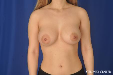 Breast Augmentation Lake Shore Dr, Chicago 11849 -  After Image 1