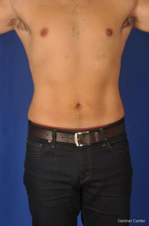 Liposuction-for-men: Patient 3 - After Image