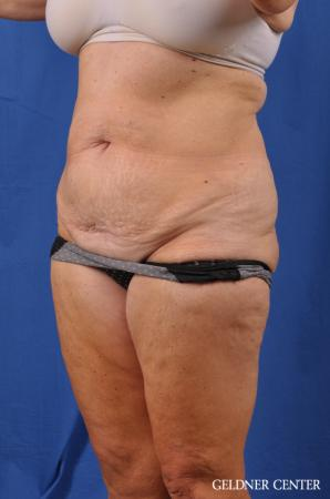 Liposuction: Patient 34 - Before and After Image 5