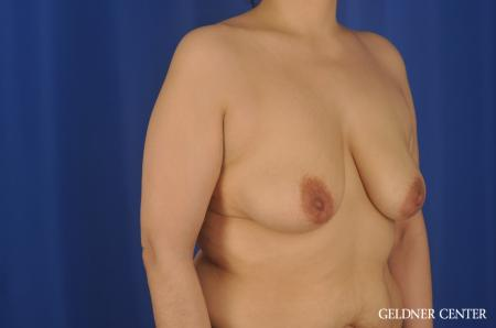 Chicago Breast Lift 8812 - Before Image 3
