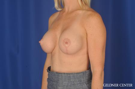 Breast Augmentation: Patient 83 - After Image 4