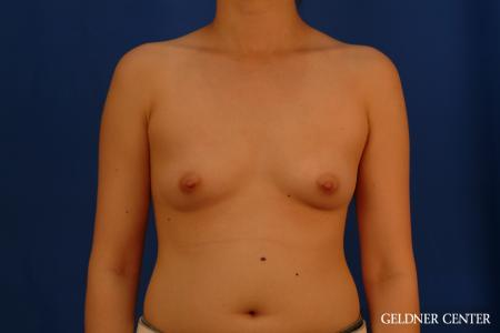 Breast Augmentation: Patient 177 - Before Image 1