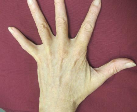 Laser: Patient 5 - After Image
