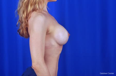 Chicago Breast Lift 2072 -  After Image 2