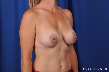 Breast Augmentation Hinsdale, Chicago 5580 -  After Image 2