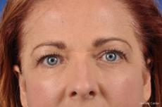 Eyelid Lift: Patient 8 - After Image